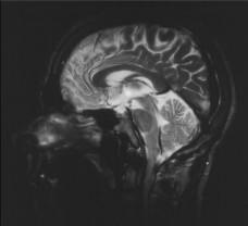 MRI Brain Scan (1)