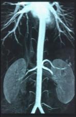 MRA Renal Arteries