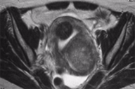 Fibroid-MRI-Axial-228x151